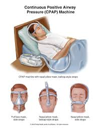 CPAP ( continuous positive airway pressure )